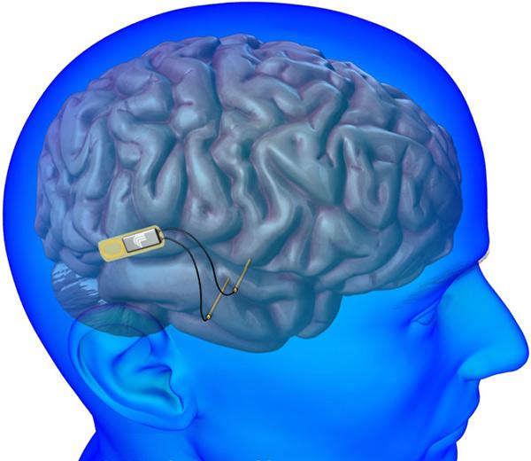 implante cerebral contra el Alzheimer
