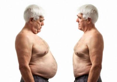 obesidad en la vejez