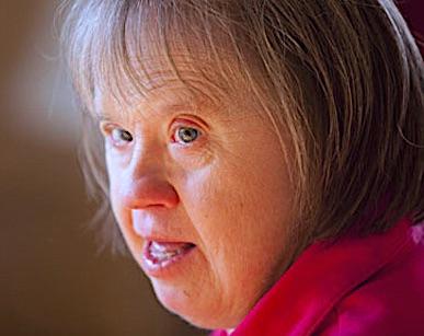 personas mayores con sindrome de down